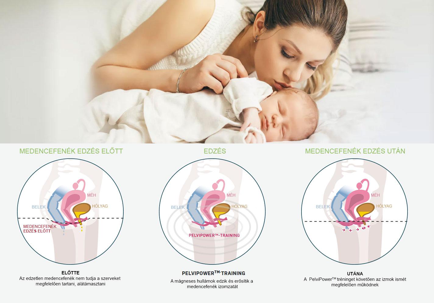 Szülés után: a vizelési gondok megoldása - HáziPatika